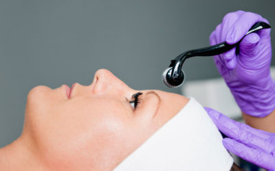 Il Microneedling